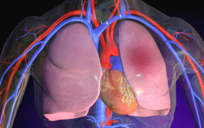 Что такое артериальная эмболия?