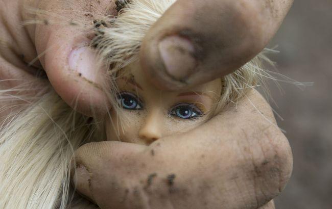 Сеть потрясло фото избитого полицейскими ребенка из приюта