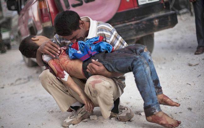 Фото: в Алеппо менее чем за неделю погибли 96 детей