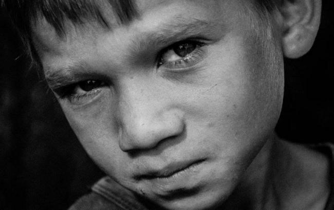 Фото: Ребенок из Луганской области (facebook.com)