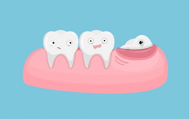 Зубы мудрости: когда их появление причиняет проблемы?
